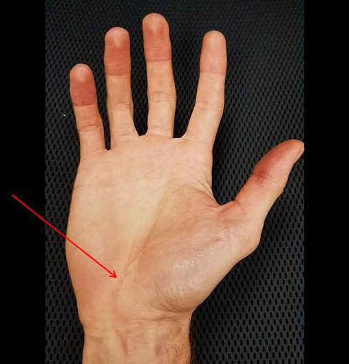 hand pp